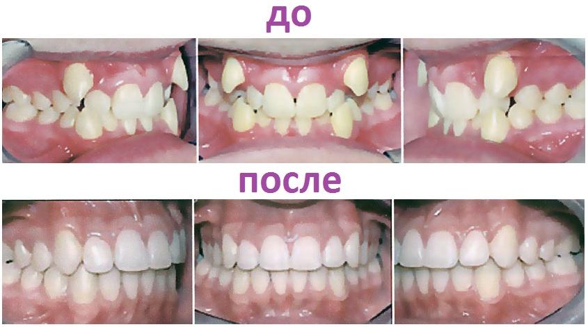 исправление зубов