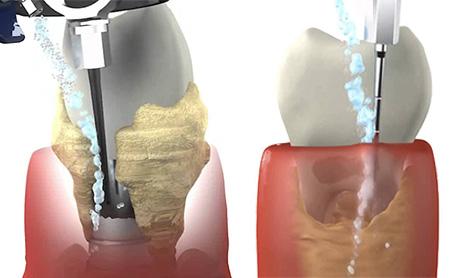 dental-vector